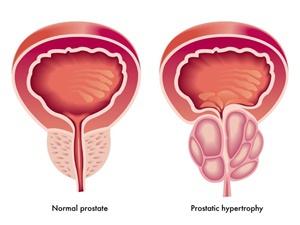 New Roots Herbal Benign Prostatic Hyperplasia